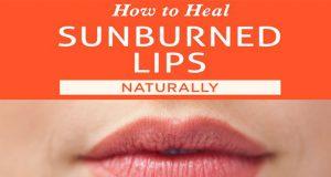Home Remedies for Sunburnt Lips