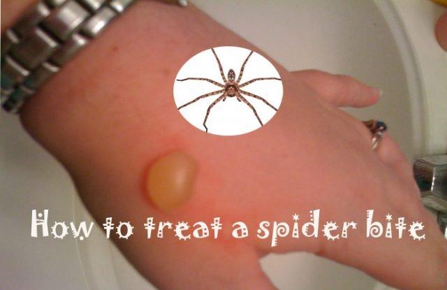Natural Ways To Treat A Spider Bite