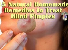 Natural Home Remedies to Treat Blind Pimples