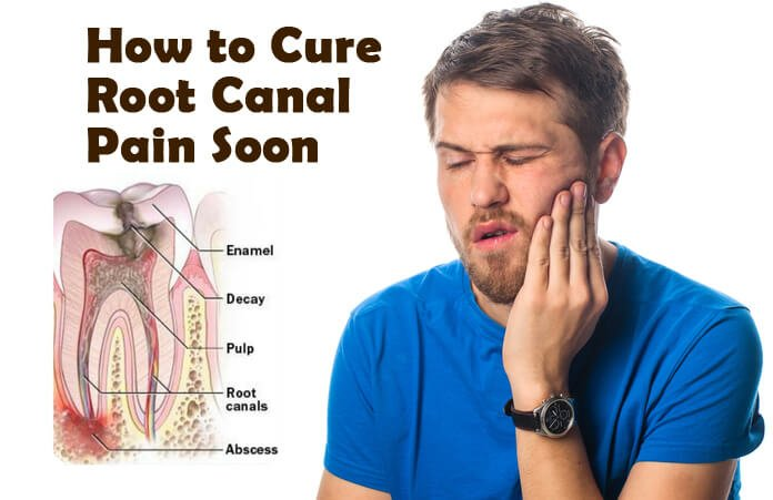 15 Easy Home Remedies To Cure Root Canal Pain Fast That Work