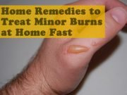Home Remedies to Treat Minor Burns at Home Fast