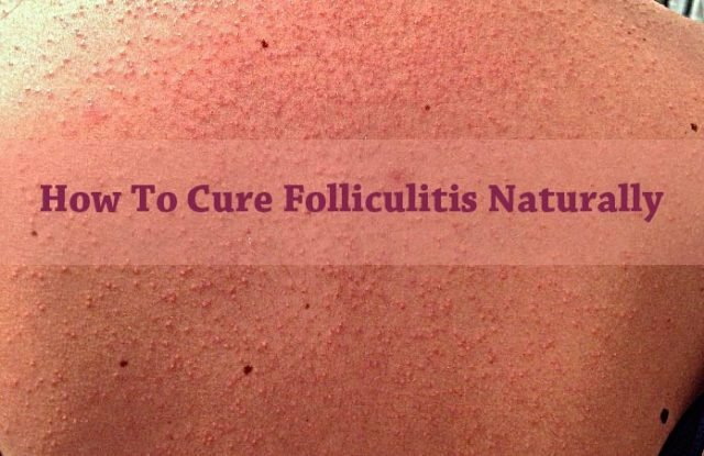 15 Natural Home Remedies For Folliculitis Cure Signs