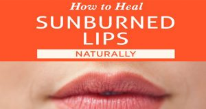 Home Remedies for Sunburnt Lips