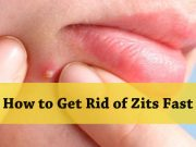 Home Remedies on How to Get Rid of Zits Fast
