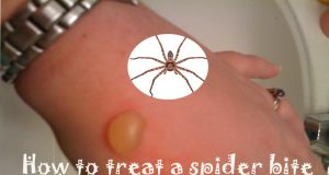 How to Treat a Spider Bite at Home