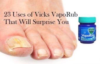 Uses of Vicks VapoRub That Will Surprise You