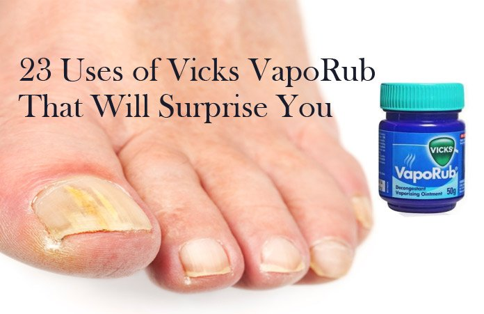 23 Uses of Vicks VapoRub That Will Surprise You - Treating From Head ...