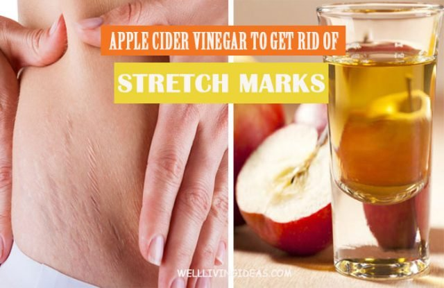 How to Remove Stretch Marks with Apple Cider Vinegar Fast
