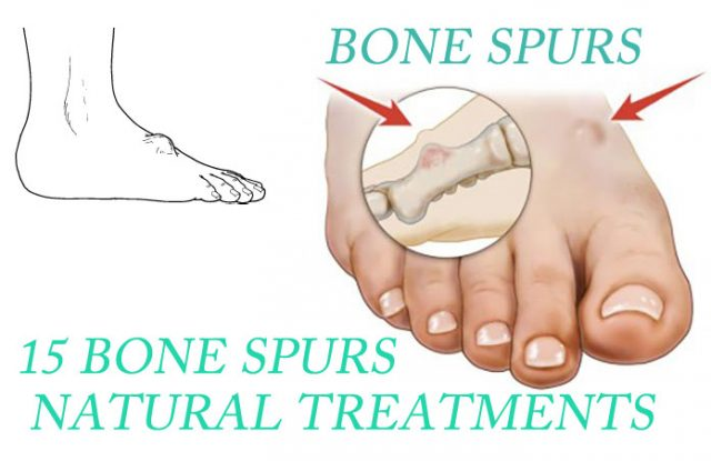 Bone Spurs (Neck And Knee) Natural Treatments