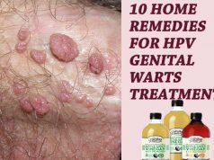 10 Home Remedies For HPV Genital Warts Treatment