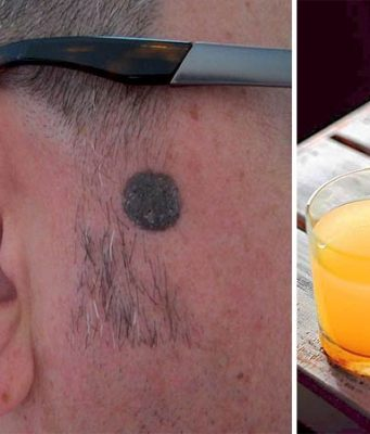 Apple Cider Vinegar Body Mole Removal Natural Remedy