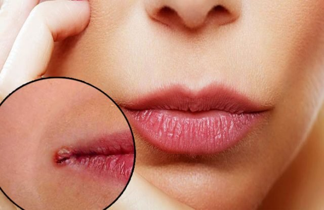 Home Remedies to Heal Cracked Lip Corners