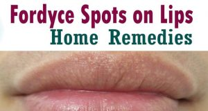 Home Remedies For Fordyce Spots On Lips Treatment