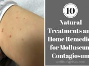 Home Remedies for Molluscum Contagiosum kids