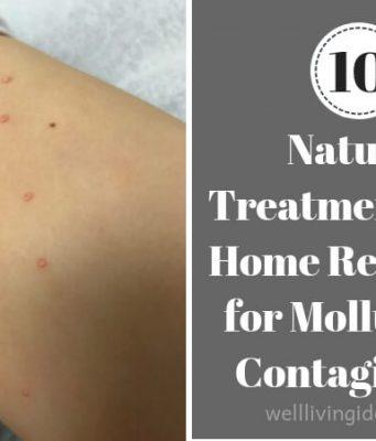 Home Remedies for Molluscum Contagiosum kids