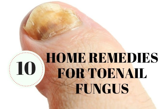 10 Simple And Natural Home Remedies For Toenail Fungus