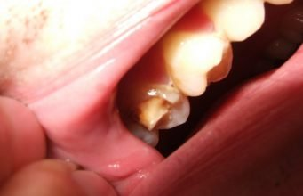 Home Remedies To Stop Broken Tooth Pain